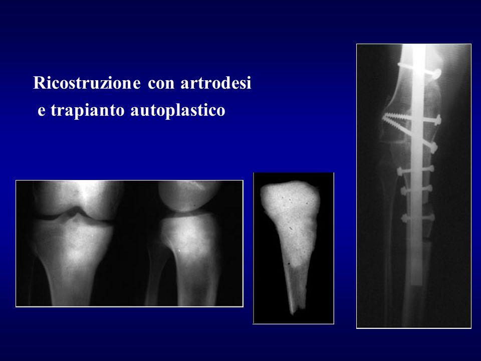 Ricostruzione con artrodesi