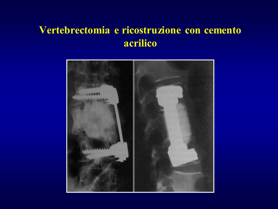 Vertebrectomia e ricostruzione con cemento acrilico