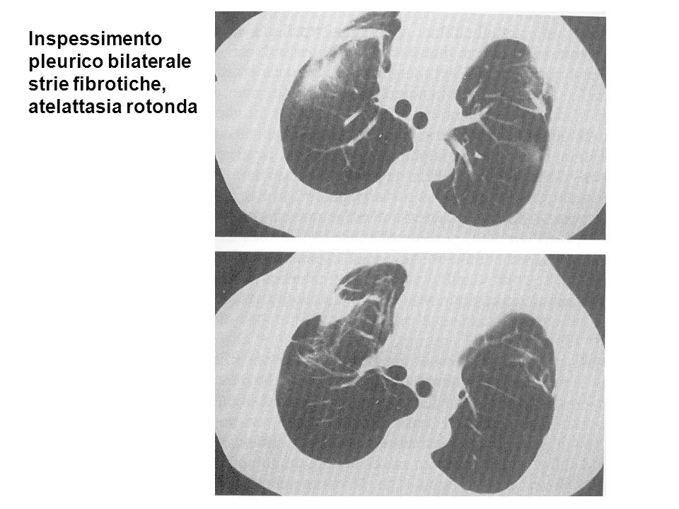 Inspessimento pleurico bilaterale strie fibrotiche, atelattasia rotonda