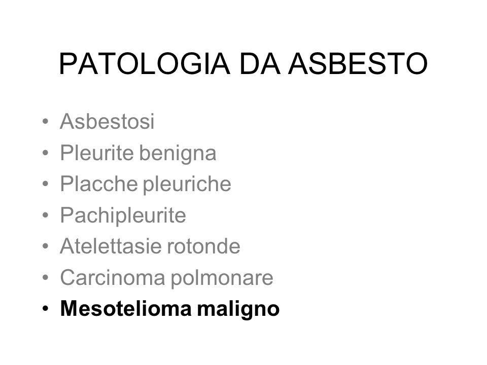 PATOLOGIA DA ASBESTO Asbestosi Pleurite benigna Placche pleuriche