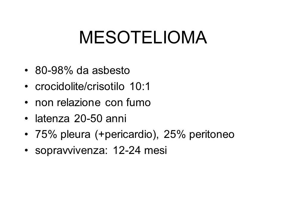 MESOTELIOMA 80-98% da asbesto crocidolite/crisotilo 10:1