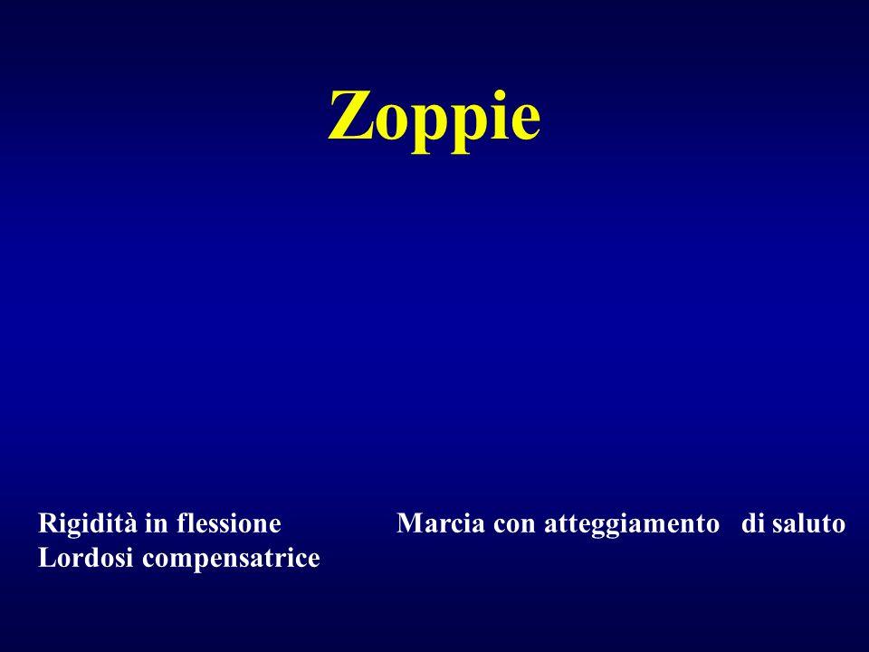 Zoppie