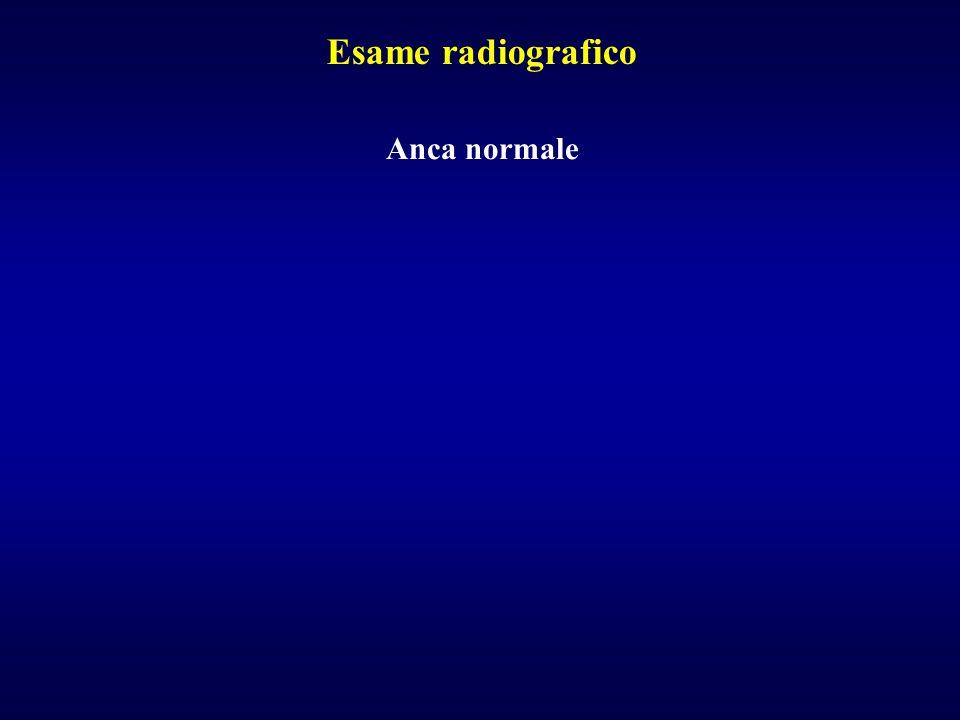 Esame radiografico Anca normale