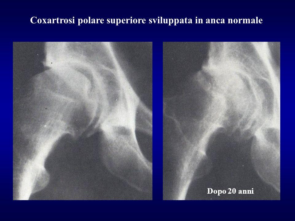 Coxartrosi polare superiore sviluppata in anca normale