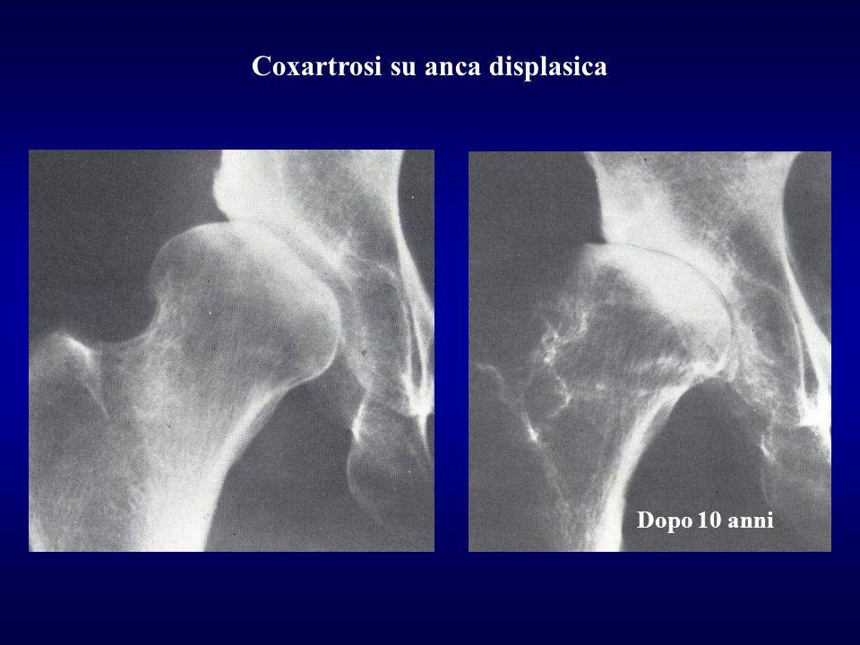 Coxartrosi su anca displasica