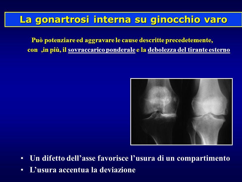 La gonartrosi interna su ginocchio varo