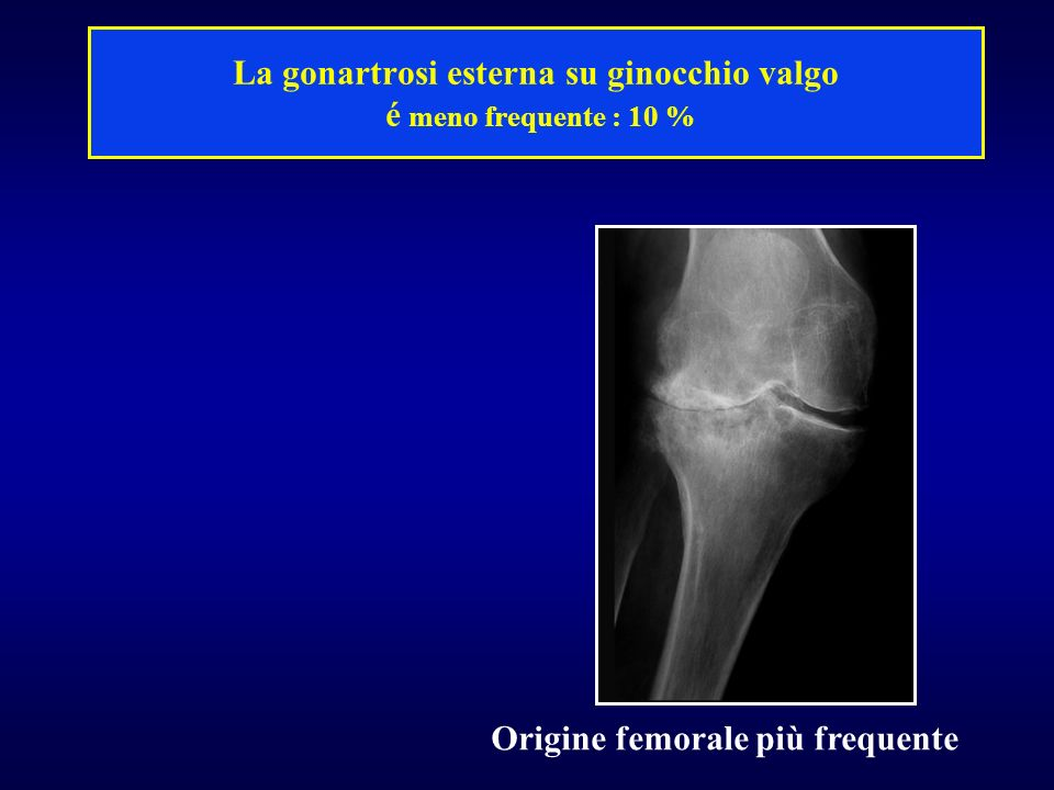 La gonartrosi esterna su ginocchio valgo é meno frequente : 10 %
