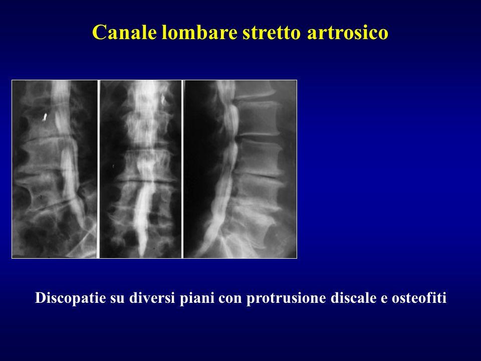 Canale lombare stretto artrosico