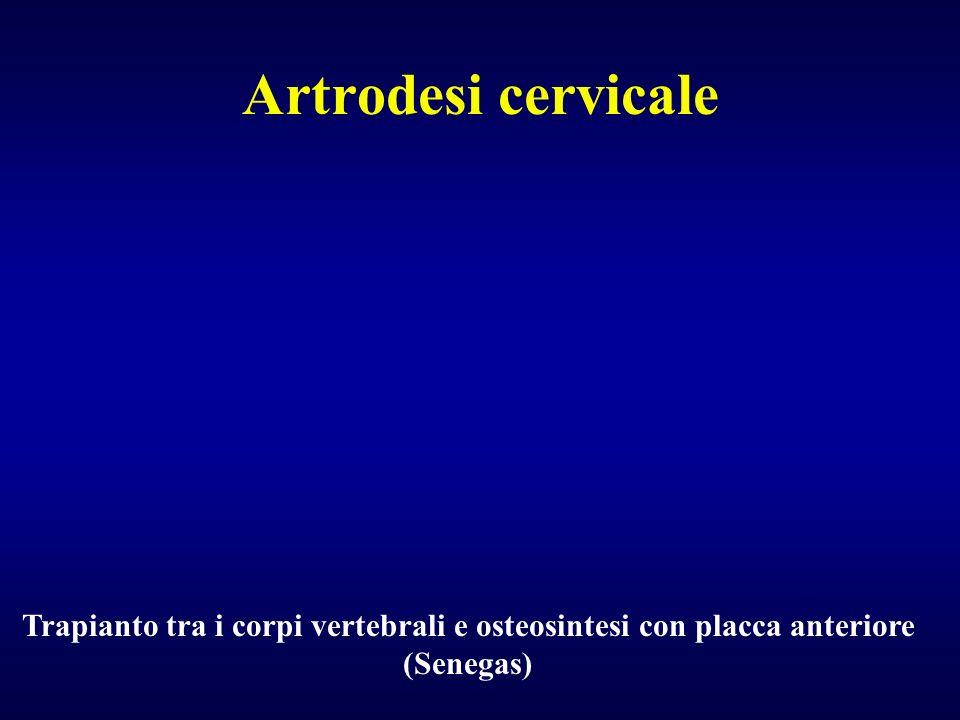 Artrodesi cervicale Trapianto tra i corpi vertebrali e osteosintesi con placca anteriore (Senegas)