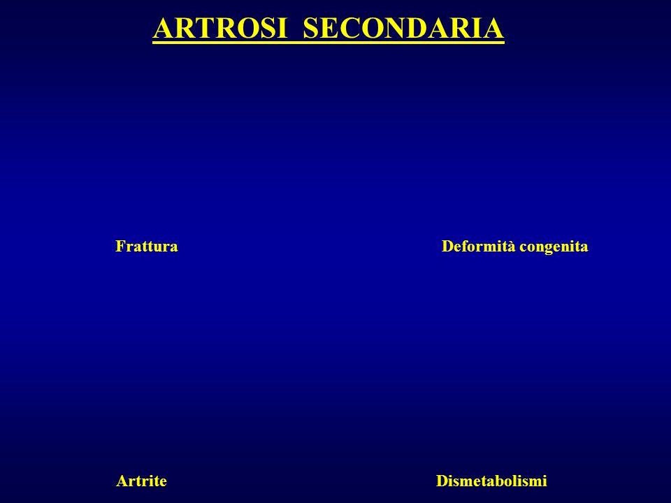 ARTROSI SECONDARIA Frattura Deformità congenita Artrite Dismetabolismi