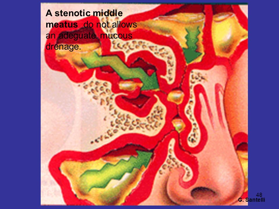 A stenotic middle meatus do not allows an adeguate mucous drenage.