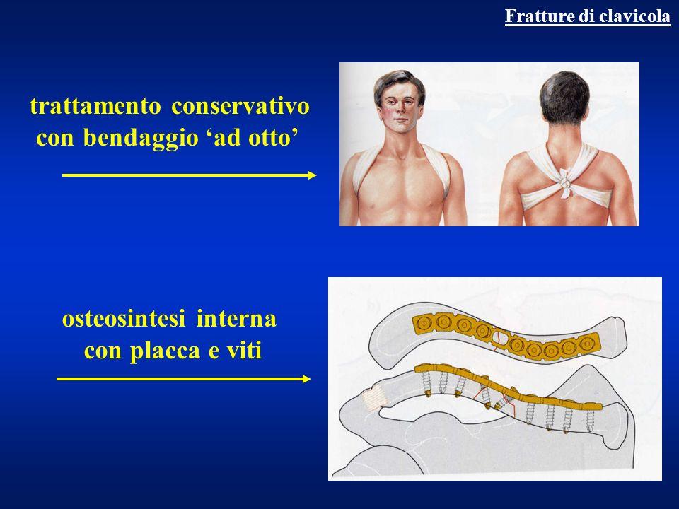 osteosintesi interna con placca e viti