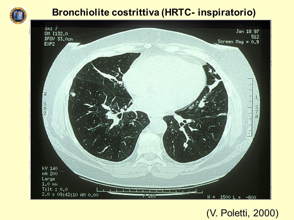 Bronchiolite costrittiva (HRTC- inspiratorio)