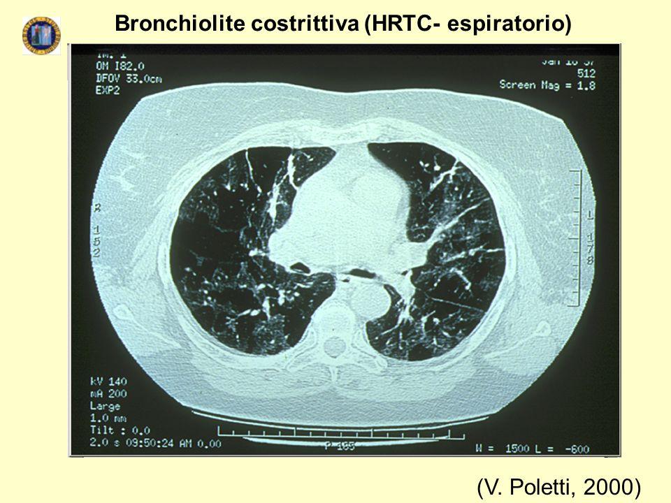 Bronchiolite costrittiva (HRTC- espiratorio)