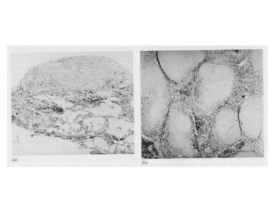 Noduli silicotici ialinizzatai e collagenizzati in un linfonodo