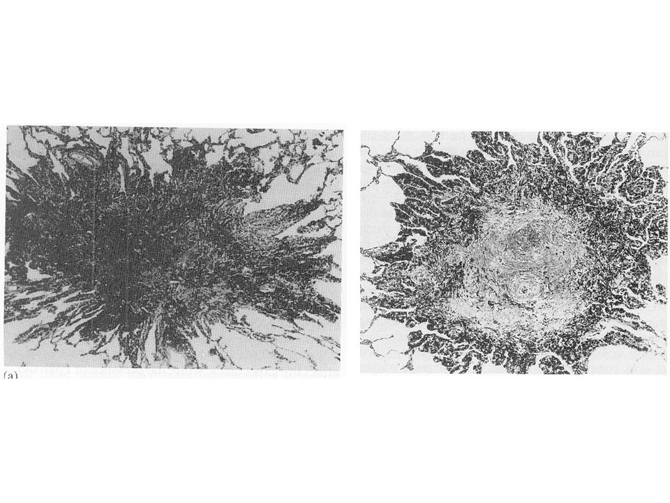Antracosi del polmone a sx: Macrofagi + polvere, minima fibrosi , aspetto stellato