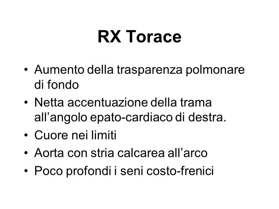 RX Torace Aumento della trasparenza polmonare di fondo