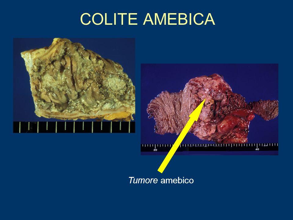 COLITE AMEBICA Tumore amebico