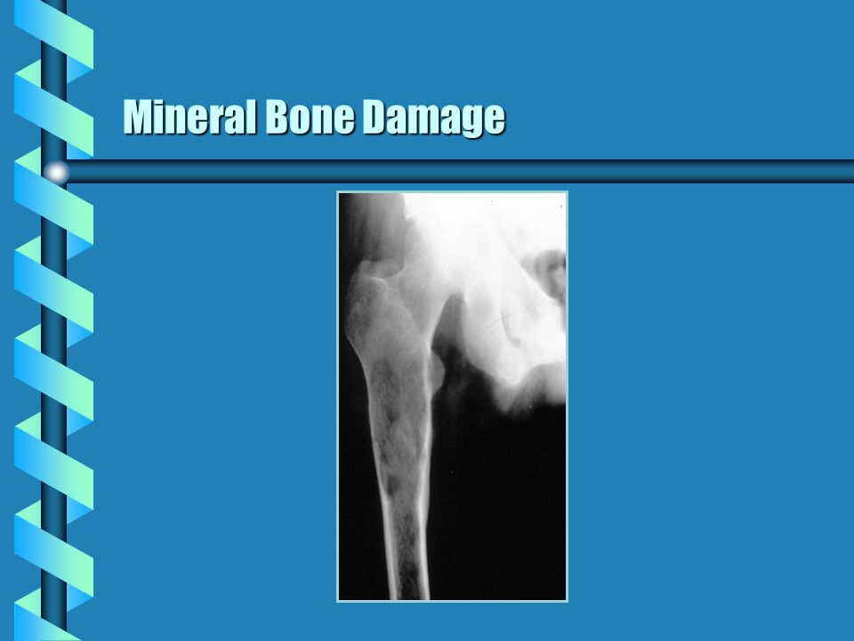 Mineral Bone Damage