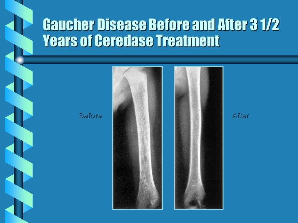Gaucher Disease Before and After 3 1/2 Years of Ceredase Treatment