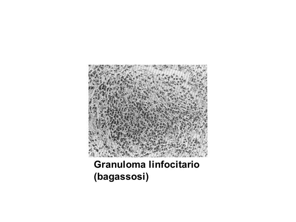 Granuloma linfocitario