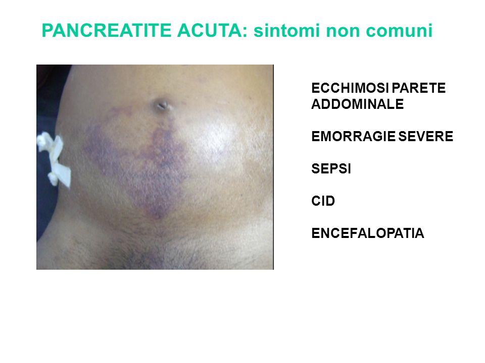PANCREATITE ACUTA: sintomi non comuni