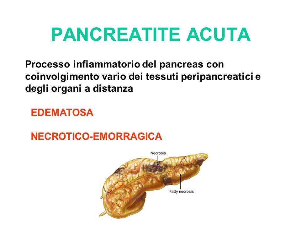 PANCREATITE ACUTA Processo infiammatorio del pancreas con coinvolgimento vario dei tessuti peripancreatici e degli organi a distanza.