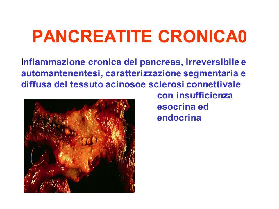 PANCREATITE CRONICA0