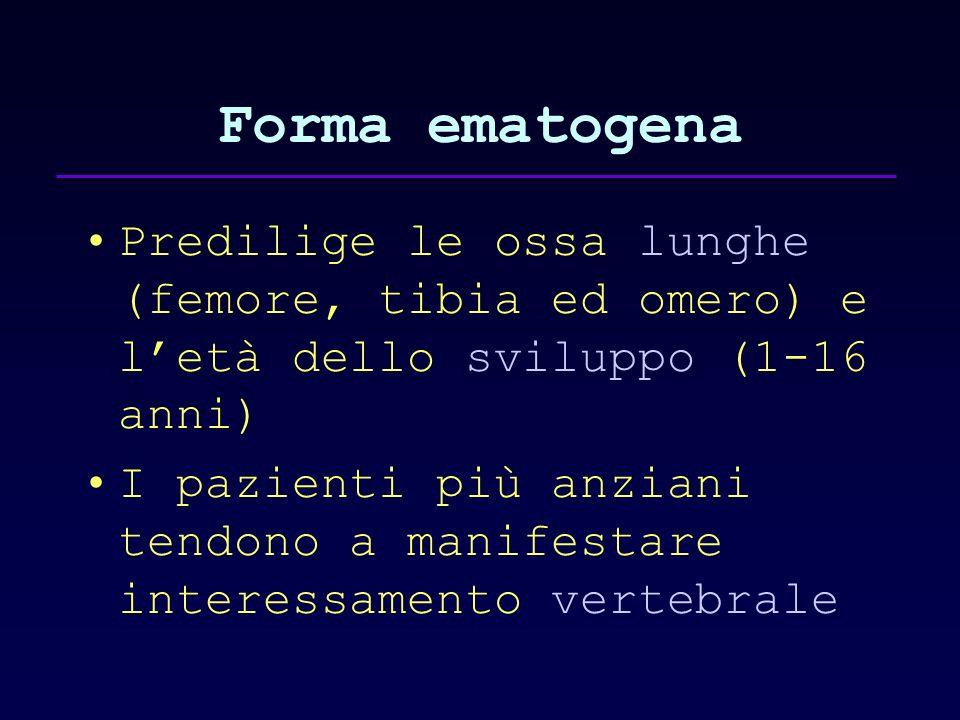 Forma ematogena Predilige le ossa lunghe (femore, tibia ed omero) e l'età dello sviluppo (1-16 anni)