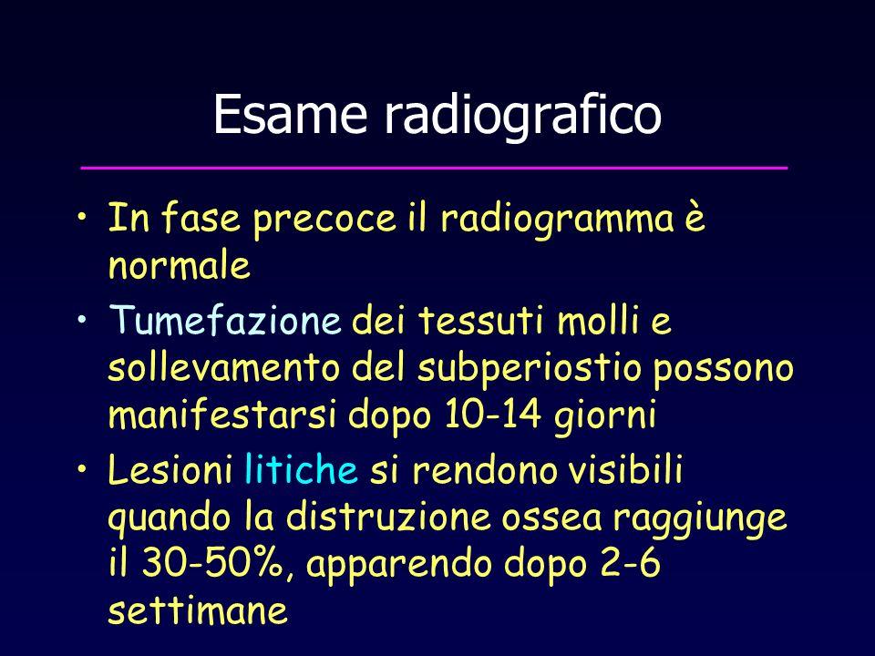 Esame radiografico In fase precoce il radiogramma è normale