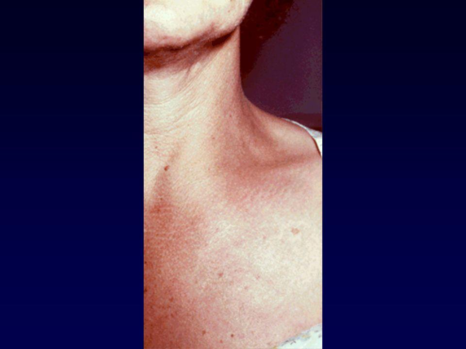 Osteomielite ematogena da S aureus alla clavicola, evidente tumefazione da ascesso sottoperiostale.