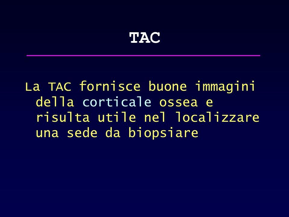 TAC La TAC fornisce buone immagini della corticale ossea e risulta utile nel localizzare una sede da biopsiare.