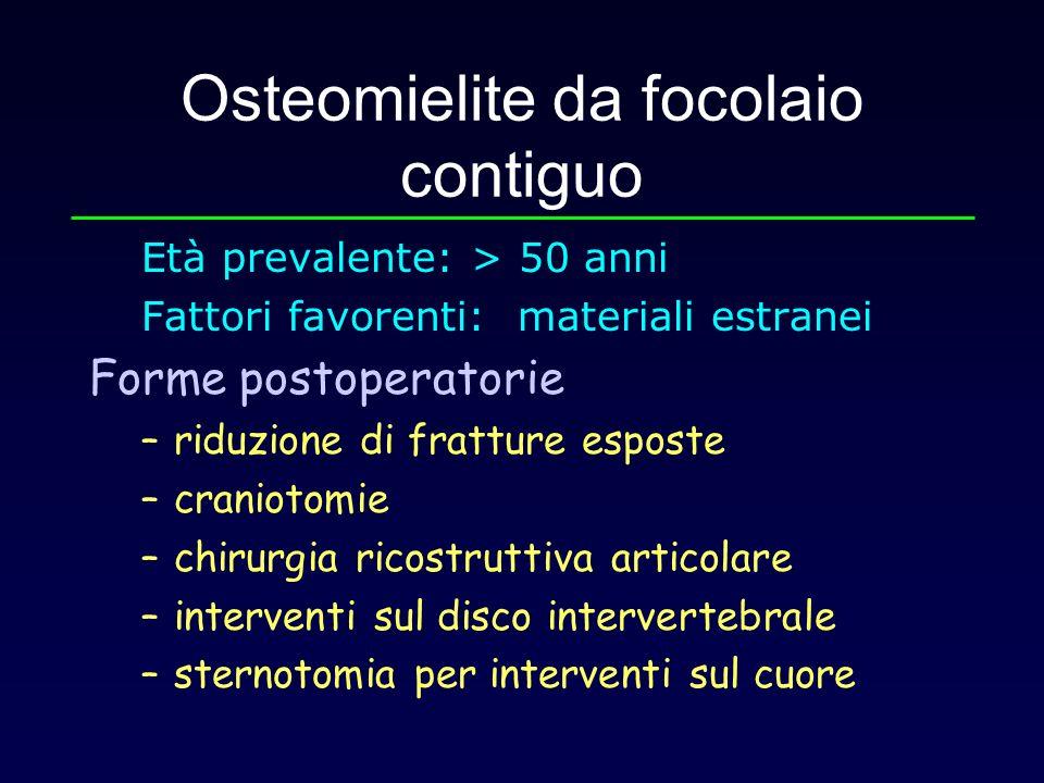 Osteomielite da focolaio contiguo