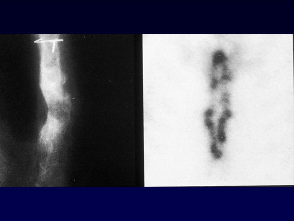 Osteomielite conseguente a sternotomia