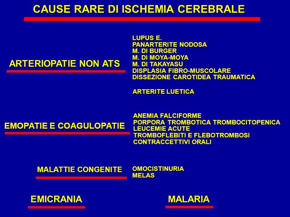 CAUSE RARE DI ISCHEMIA CEREBRALE
