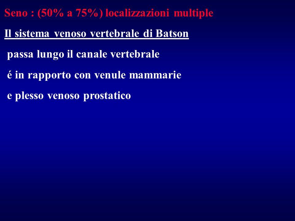 Seno : (50% a 75%) localizzazioni multiple