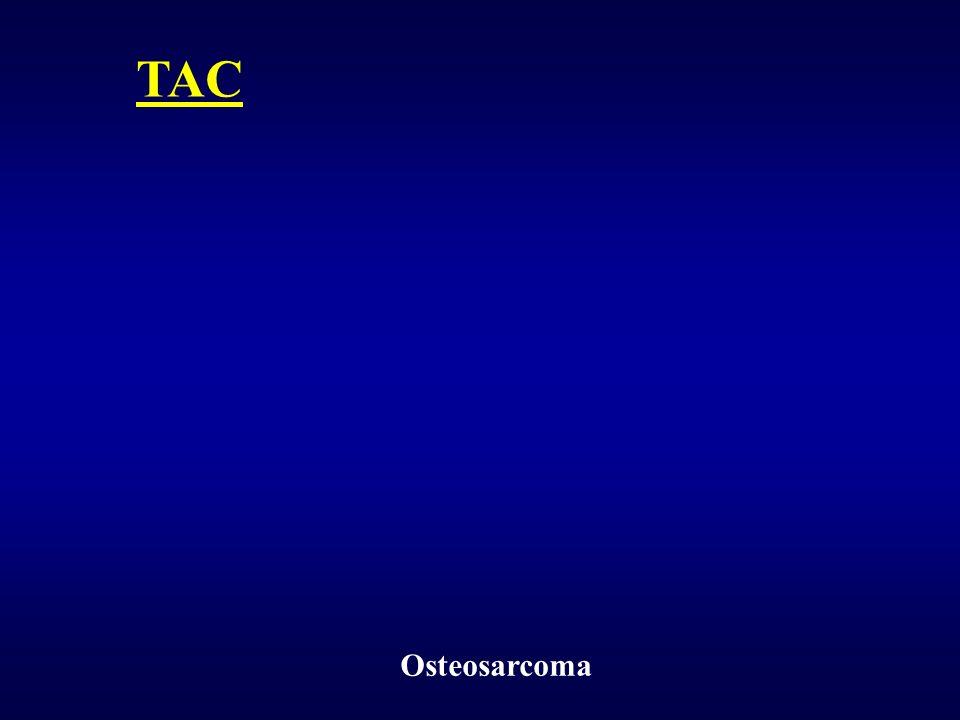 TAC Osteosarcoma