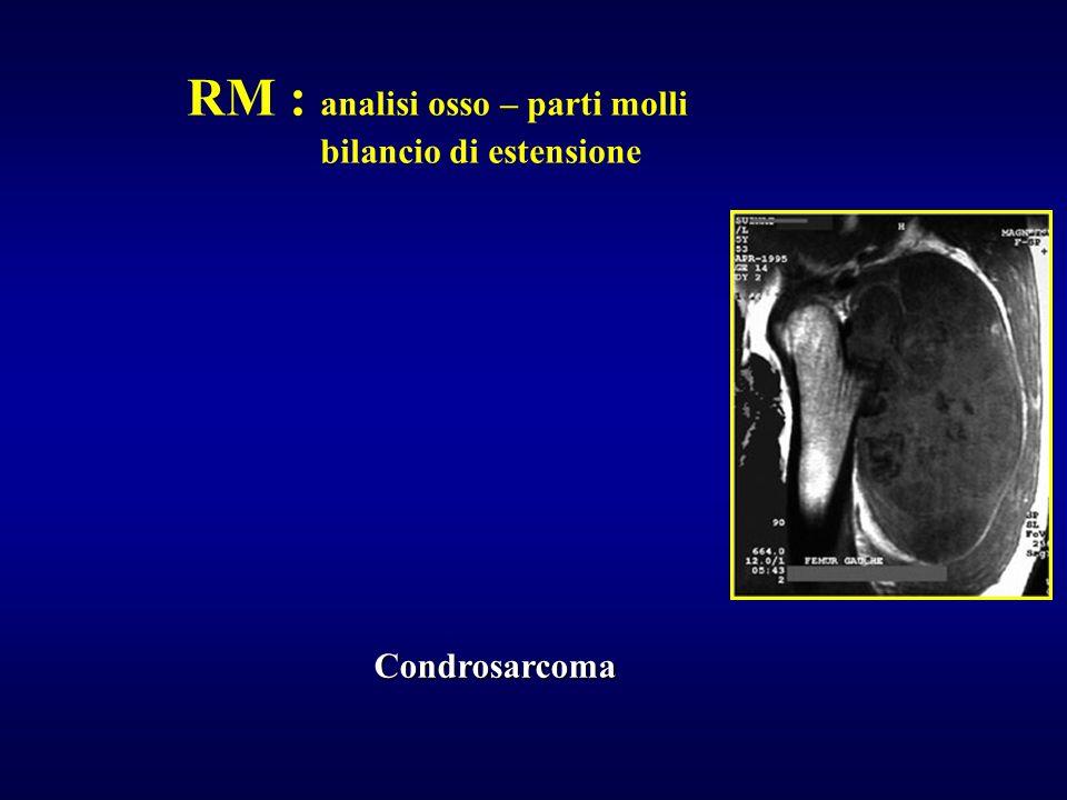 RM : analisi osso – parti molli