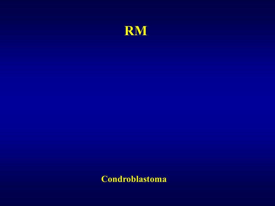RM Condroblastoma