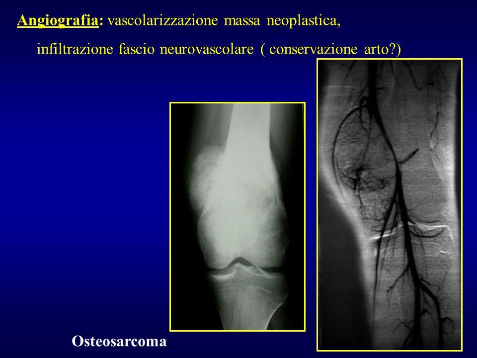 Angiografia: vascolarizzazione massa neoplastica,