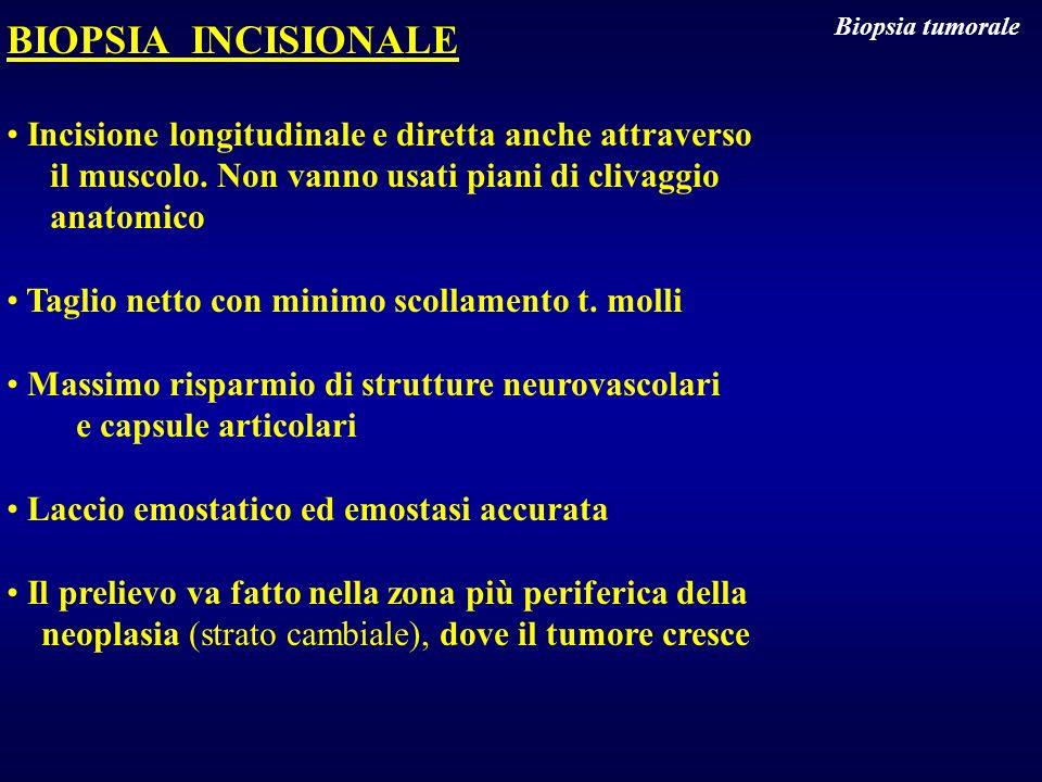 BIOPSIA INCISIONALE Incisione longitudinale e diretta anche attraverso