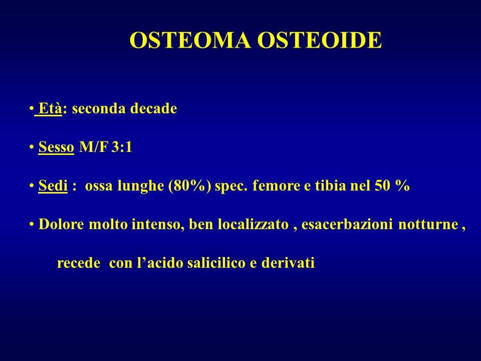 OSTEOMA OSTEOIDE Età: seconda decade Sesso M/F 3:1