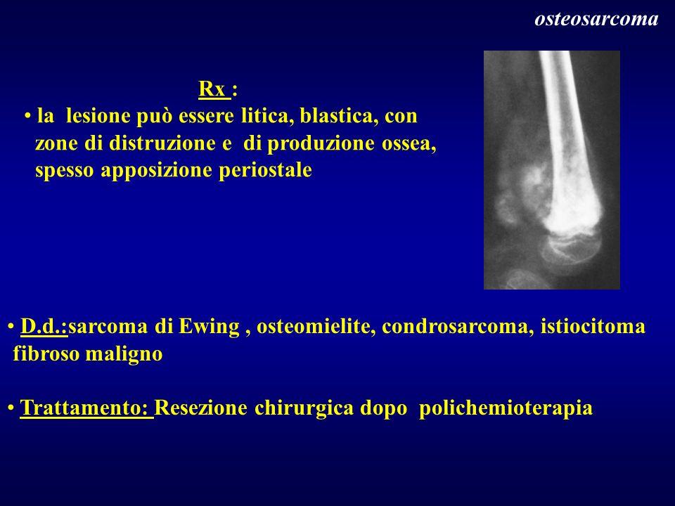 osteosarcoma Rx : la lesione può essere litica, blastica, con. zone di distruzione e di produzione ossea,