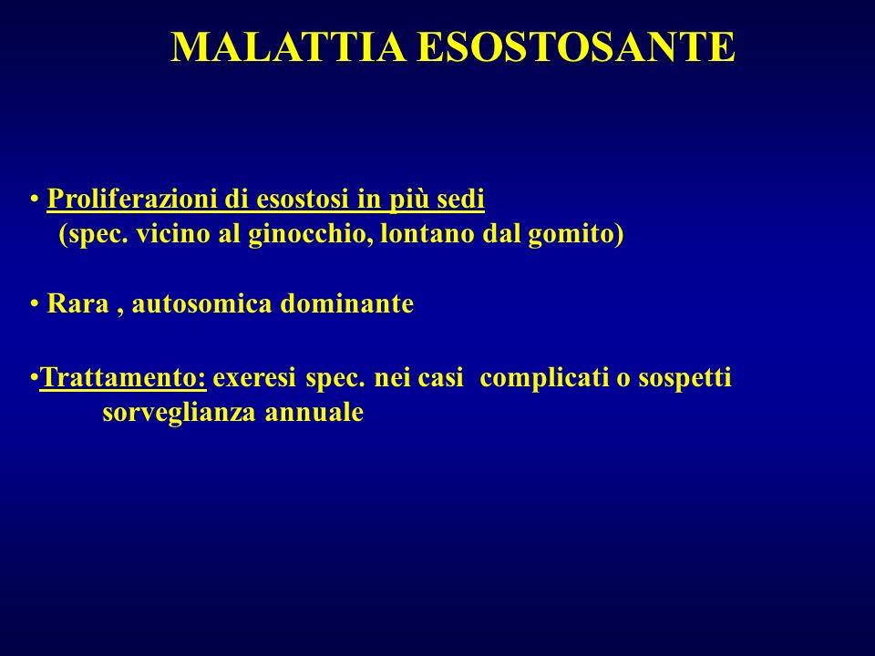 MALATTIA ESOSTOSANTE Proliferazioni di esostosi in più sedi
