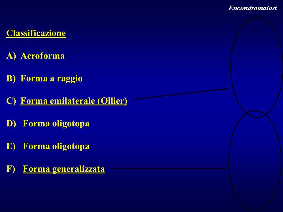 Forma emilaterale (Ollier) Forma oligotopa