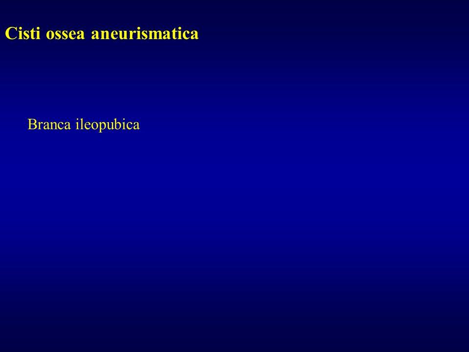 Cisti ossea aneurismatica