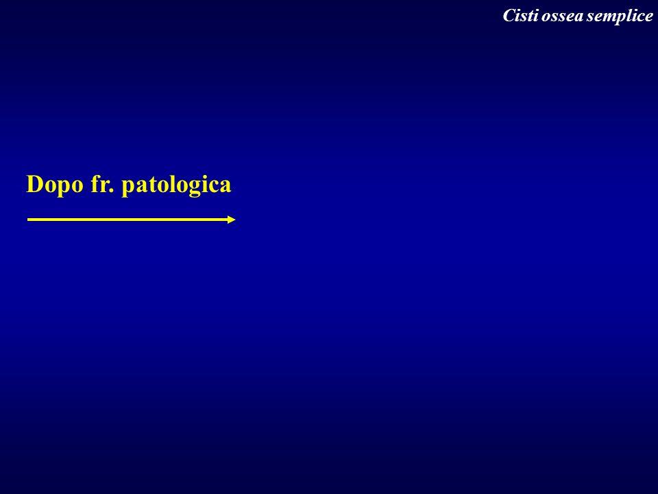 Cisti ossea semplice Dopo fr. patologica