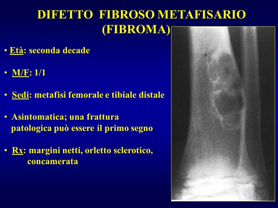 DIFETTO FIBROSO METAFISARIO (FIBROMA)