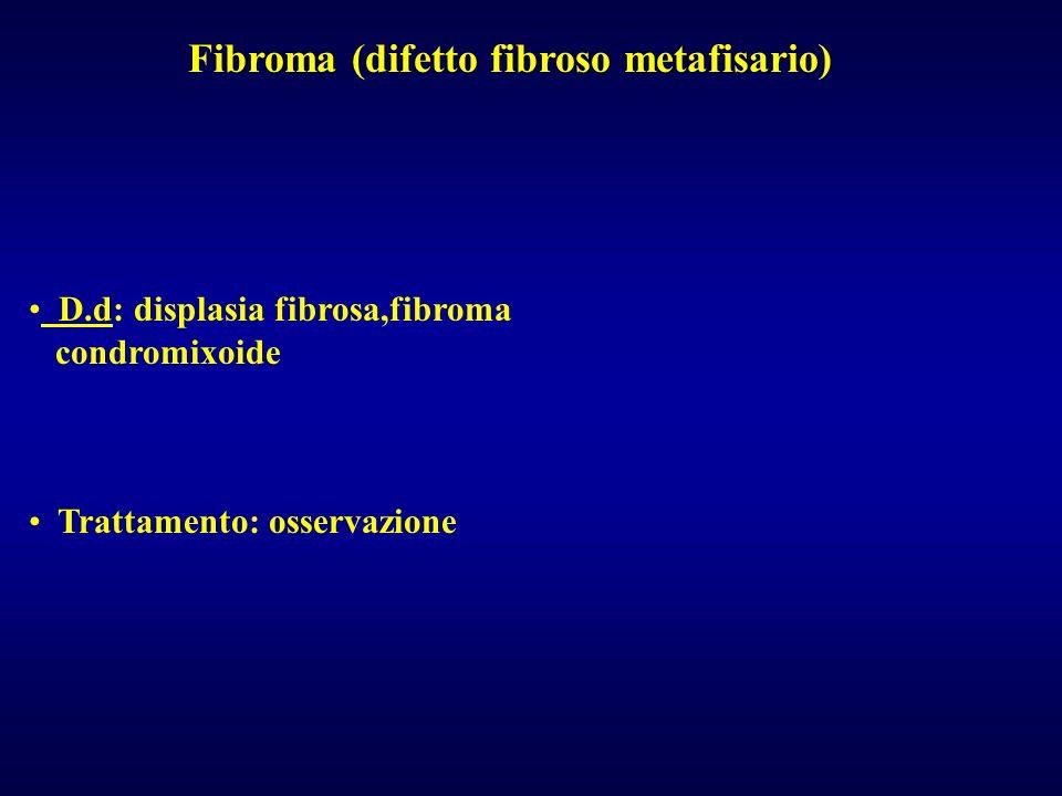 Fibroma (difetto fibroso metafisario)