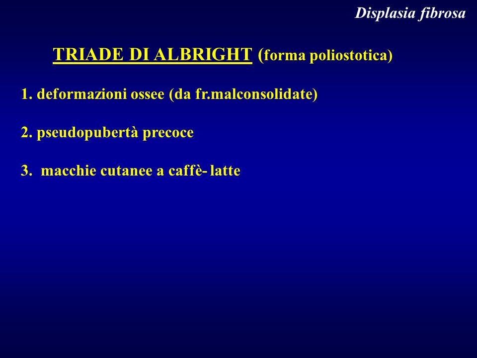 Displasia fibrosa TRIADE DI ALBRIGHT (forma poliostotica) 1. deformazioni ossee (da fr.malconsolidate)